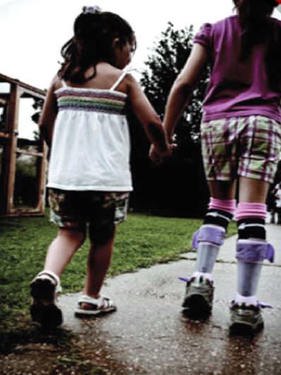 A Study of Orthotics and Walking Activity in CP